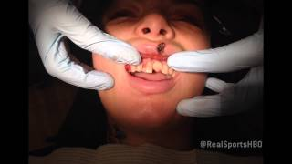 getlinkyoutube.com-Christy Mack's Reconstructive Dental Work: Real Sports Bonus Clip (HBO)