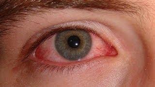 getlinkyoutube.com-سبب الرعشة أو النبض في العين