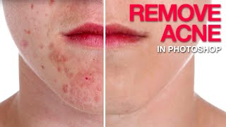 getlinkyoutube.com-How to Remove Acne in Photoshop