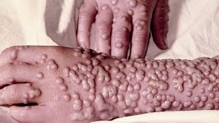 getlinkyoutube.com-【閲覧注意】悪魔の病気 天然痘