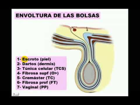 Pared De Abdomen 5.flv