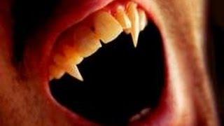 getlinkyoutube.com-【閲覧注意】ヴァンパイア病 ~吸血鬼伝説の元になったと言われている奇病~