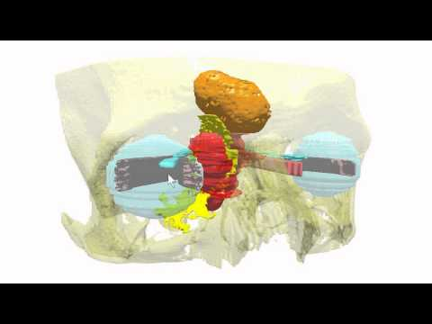 Navigacijska 3D-CA-RP-FESS - operacija nosa, sinusa, orbite i baze lubanje