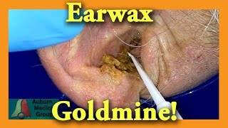 Earwax GOLDMINE | Auburn Medical Group