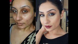 getlinkyoutube.com-Acne scaring rosacea Foundation routine Indian Olive skin tone|| Raji Osahn