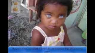 getlinkyoutube.com-17 Black Kids With Blue Eyes
