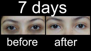 getlinkyoutube.com-काले घेरों से कैसे छुटकारा पाएं/magical Home Remedies to remove Under eye Dark Circles (Hindi)