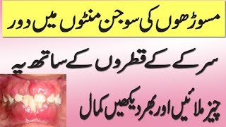 GUM SWELLING TREATMENT/MASOORO KI SUJAN OR DANTO KO CHAMKANY KA ASAN TARKA HEALTH TIPS IN URD