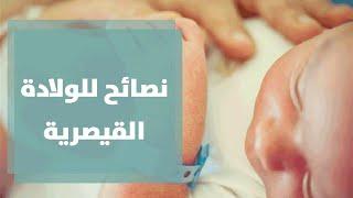 getlinkyoutube.com-الولادة القيصرية مع رولا القطامي