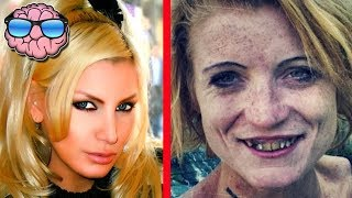 getlinkyoutube.com-Top 10 Shocking Before And After Drug Use Photos