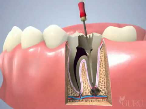 YouTube   Traitement de canal traitement endodontique