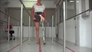 getlinkyoutube.com-Protese com Novo Cartucho p/ Desarticulação de Quadril - Ortopedia Conforpés