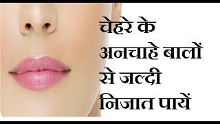 getlinkyoutube.com-How To Remove Facial Hair Naturally & Permanently At Home | Hindi Tips | Jyotir