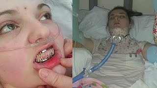 getlinkyoutube.com-17 Yr Old Teenager Suffers From Rare Condition - Emily James