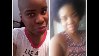Hair Growth Like Crazy (Alopecia /hair loss