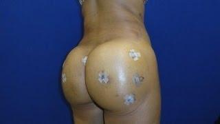 getlinkyoutube.com-Butt Injection Info Kit 2