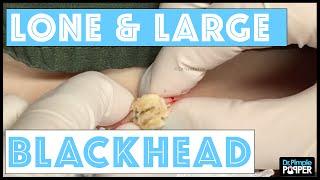 getlinkyoutube.com-One Lone & Large Blackhead