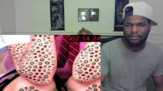 getlinkyoutube.com-Do YOU Have Trypophobia? Reaction! & Thoughts