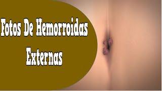 getlinkyoutube.com-Fotos De Hemorroidas Externas, Sintomas Da Hemorroida, Hemorroida Gravidez, Dieta Para Hemorroidas
