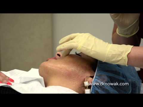 San Diego MicroPen & PRP Treatments Nowak Aesthetics