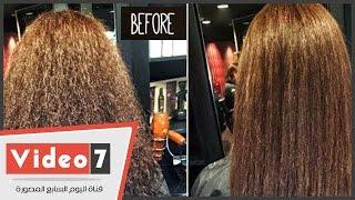 """getlinkyoutube.com-بالفيديو.. مراحل استخدام """"البوتكس"""" أقوى وأحدث علاج لمشاكل الشعر فى العالم"""
