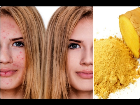 How to Use Ginger to Cure Acne