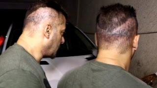 getlinkyoutube.com-Salman Khan Hair Transplant Goes Wrong