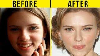 getlinkyoutube.com-5 Best Celebrity Nose Jobs In Hollywood (Before And After)