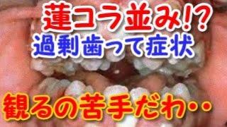 getlinkyoutube.com-【閲覧注意】過剰歯って症状、観るの苦手だわ・・・【蓮コラ注意】