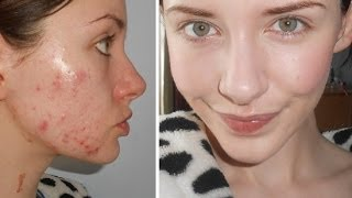 getlinkyoutube.com-Food + Drink Tips For Acne & Products I've Used For Clear Skin