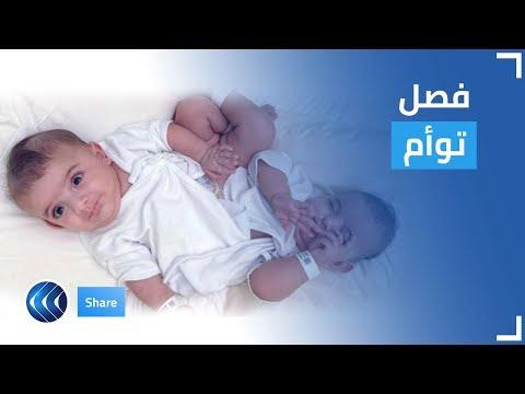 قناة الغد:قصة التوأم الليبي الملتصق تبكي السعوديين فرحا بنجاح العملية.. إليكم التفاصيل | شير