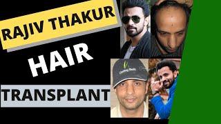 getlinkyoutube.com-Rajiv Thakur Hair Transplant@DarlingBuds