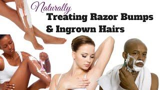 getlinkyoutube.com-Treating Razor Bumps & Ingrown Hair