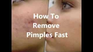 How To Remove Pimples Fast [99% Working! No Drug!!!]