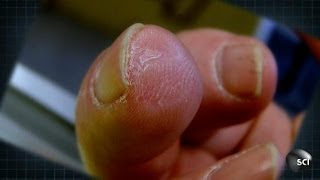 getlinkyoutube.com-How to Grow a New Fingertip | World's Strangest