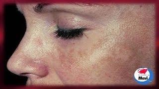 getlinkyoutube.com-Como eliminar las manchas solares o marrones de la piel - Cuidados de la piel