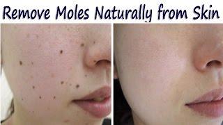 त्वचा से जिद्दी तिल, मस्से हटाने के रामबाण घरेलू उपाय – Remove Moles Naturally from Skin
