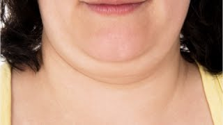 getlinkyoutube.com-How to Get Rid of Double Chin Fast