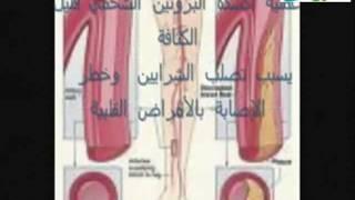 getlinkyoutube.com-معجزة زيت الزيتون