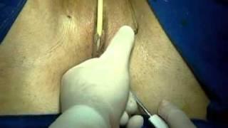 getlinkyoutube.com-Cirugía Incontinencia urinaria. Info: www.drcapmartin.com o en Bogotá al 2880407
