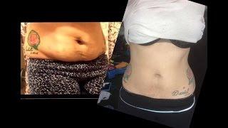 getlinkyoutube.com-Waist Training Update! Before and After