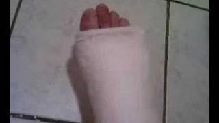 my long leg cast