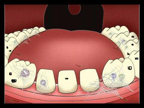 แมงกินฟัน.wmv