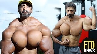 getlinkyoutube.com-Does He Look Good? Man Injects Muscles With Oil