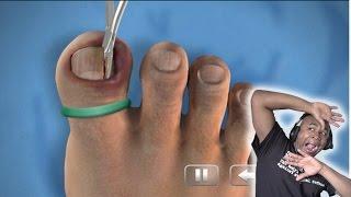 getlinkyoutube.com-TOO DISGUSTING TO WATCH!! - Ingrown Toenail Surgery Simulator