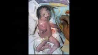 getlinkyoutube.com-Part 1 Hesham Tillawi Depleted Uranium in Iraq Ten years after the War still causes deformed births