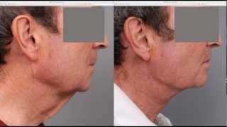 getlinkyoutube.com-Neck Lift For Men   Dr. Sterry