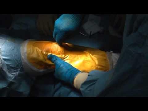 Protesi monocompartimentale di ginocchio