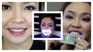 getlinkyoutube.com-Paano Ako:  Teeth Whitening Routine