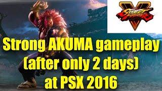 """getlinkyoutube.com-FourWude's """"Day 2"""" AKUMA - Capcom Cup 2016 Gameplay"""